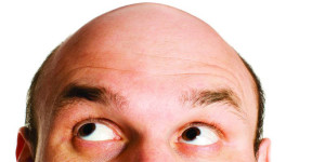 hair loss and treatment