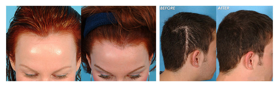Hair Transplant after and before images - Adworld India